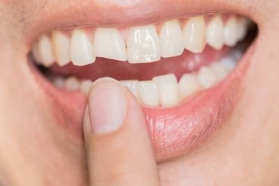 Chipped front tooth can spoil your smile.