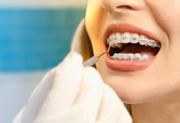 A smiling woman with dental braces - Best preventative dentist in Hoppers Crossing
