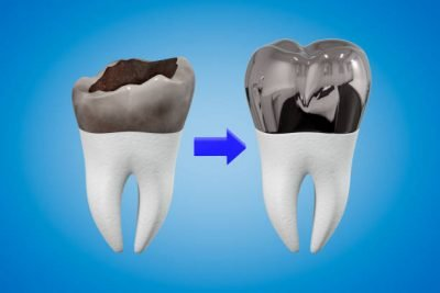 A loose filling or crown can cause pain due to the exposed tooth (dentine).